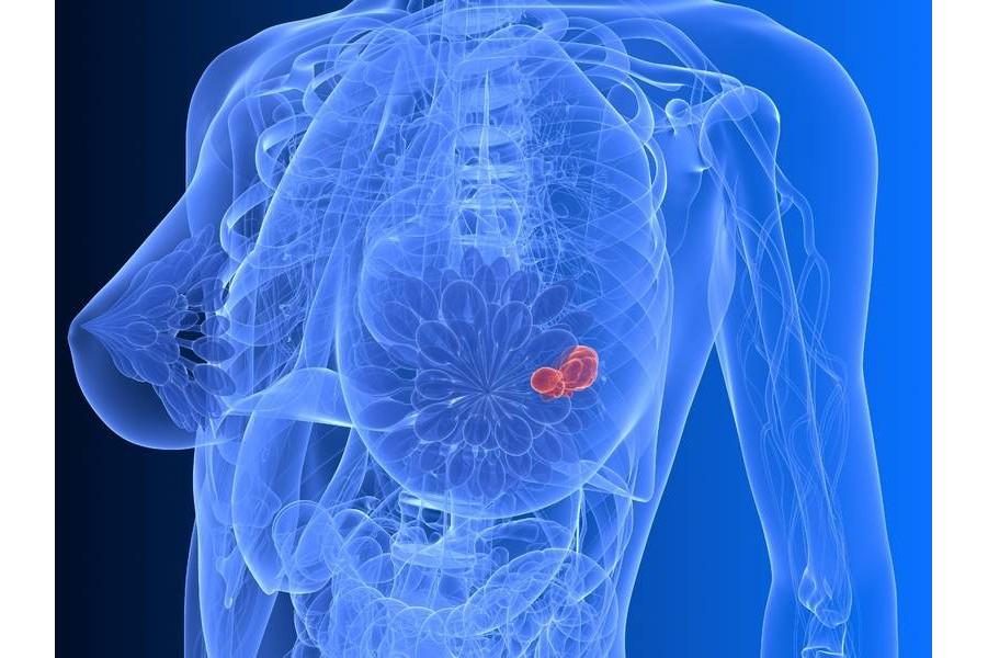 Cách chữa ung thư vú, thói quen Thở Dài Và Bệnh Ung Thư Vú