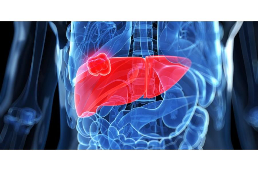 Cách chữa bệnh viêm gan siêu vi