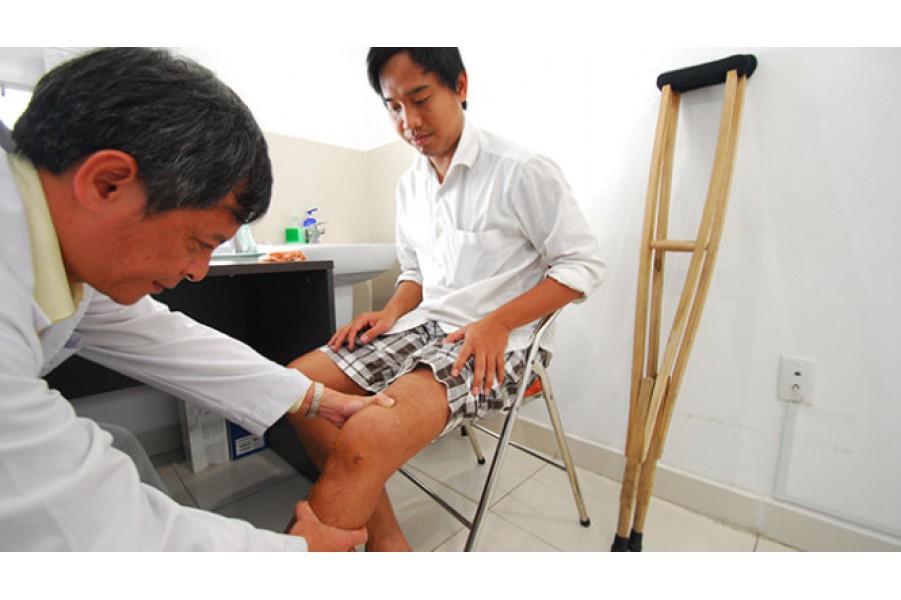Cách chữa phục hồi chức năng vận động, sau khi bị đánh gẫy xương tê liệt