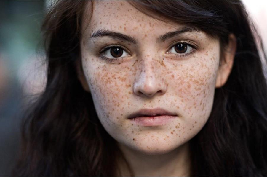 Cách chữa bệnh nám da mặt, ngứa và to dần lên (sần sùi)