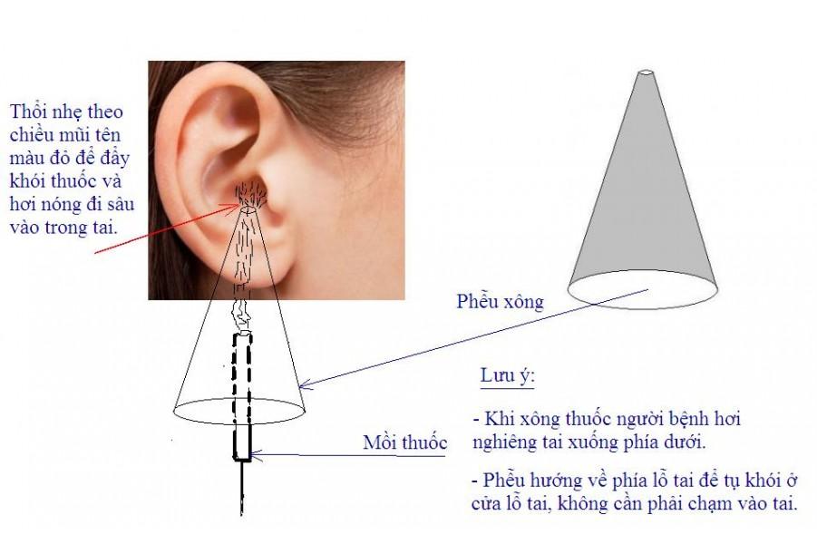 Viêm tai giữa cấp là gì?
