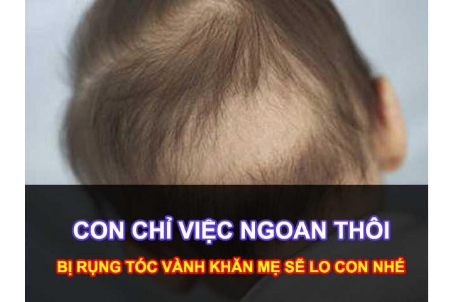 Giải pháp cỉa thiện Hiện tượng rụng tóc ở trẻ sơ sinh (Rụng tóc máu và rụng tóc vành khăn