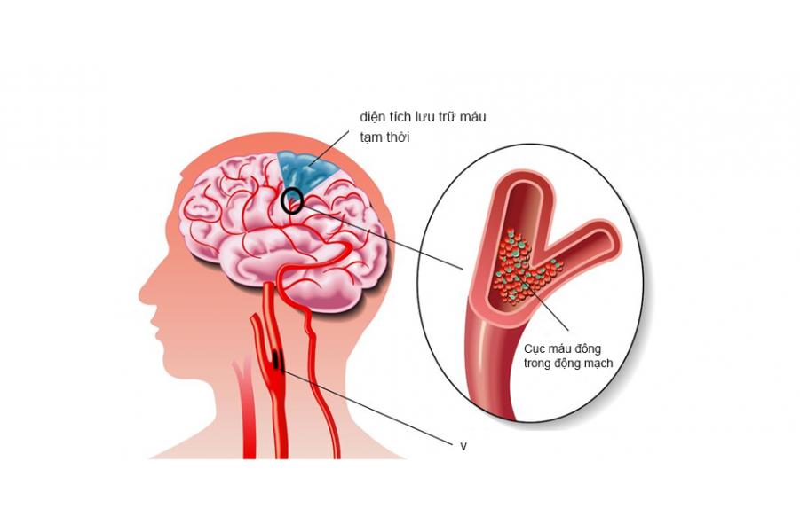 Trị bệnh thiếu máu não